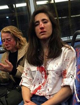 Bus attack boy apologises